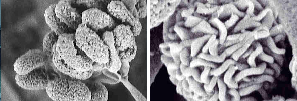 Two images of Stachybotrys Chartarum veiwed through a Scanning Electron Micrograph